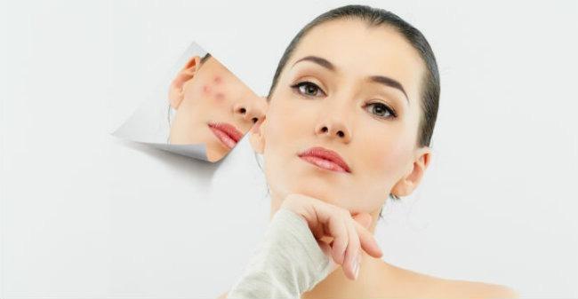 Como elegir un tratamiento facial contra el acne