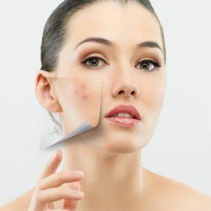 Tratamiento facial contra el acne