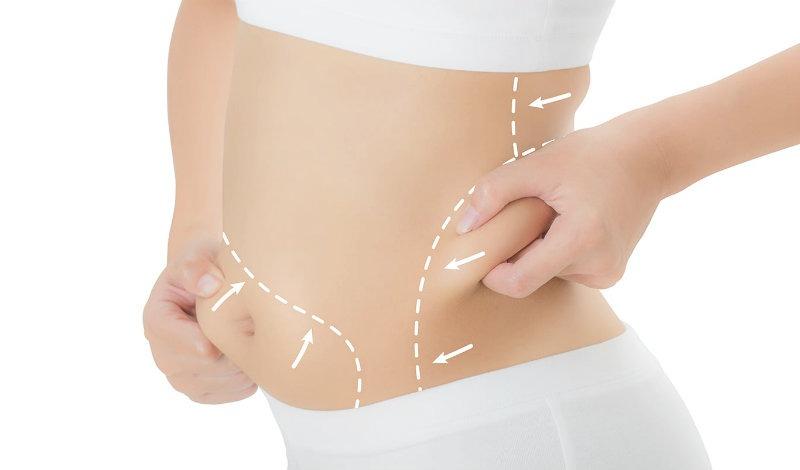 Resultado de imagen para tratamientos esteticos grasa localizada